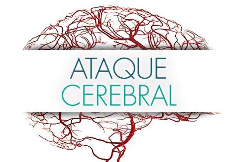 Ataque cerebral – Síntomas, tipos y tratamientos.